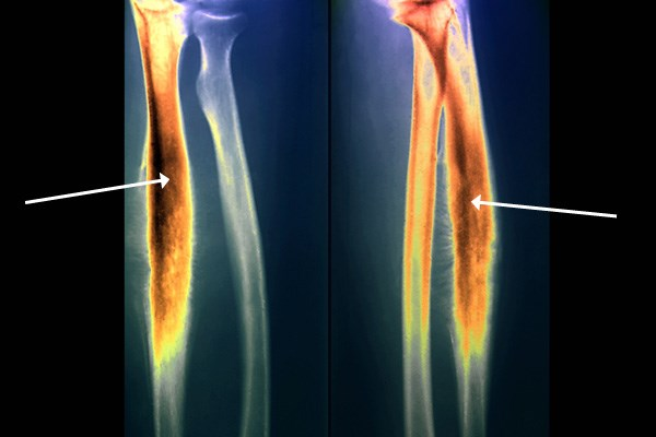 Colored X-rays of the Forearm