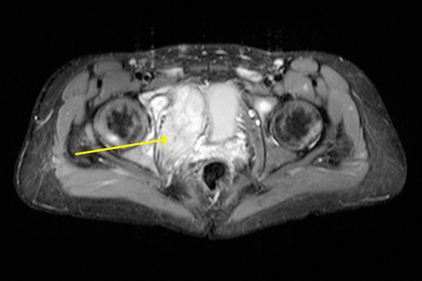 Horizontal View of Pelvic MRI Scan