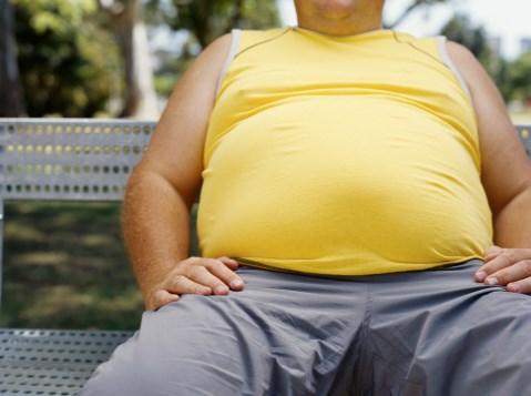 Morbid Obesity Ups Mortality Rate