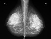Full-Field Digital Mammography Linked to Lower Recall, Biopsy Rates