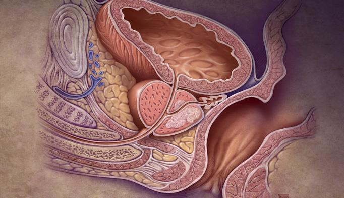 tumore prostata news anchors