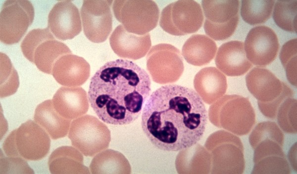 Micafungin may be an effective alternative antifungal in patients receiving chemotherapy for ALL and MDS.