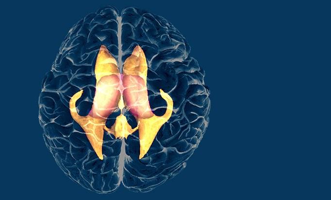 Adjuvant Temozolomide Improves Overall Survival in Anaplastic Glioma Subtype
