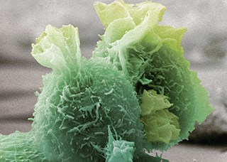 Colored scanning electron micrograph of sarcoma cells