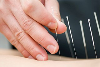 Acupuncture Improves Appetite in GI Tract Cancer
