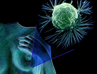 A biomarker can predict who will experience late breast cancer recurrence / Science Source