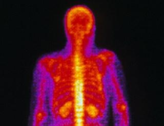 Thyroid cancer metastases / Science Source