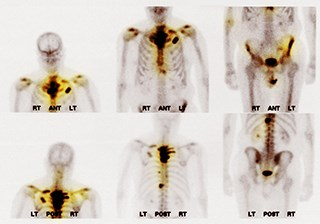 Bone scan showing multiple metastases / Science Source