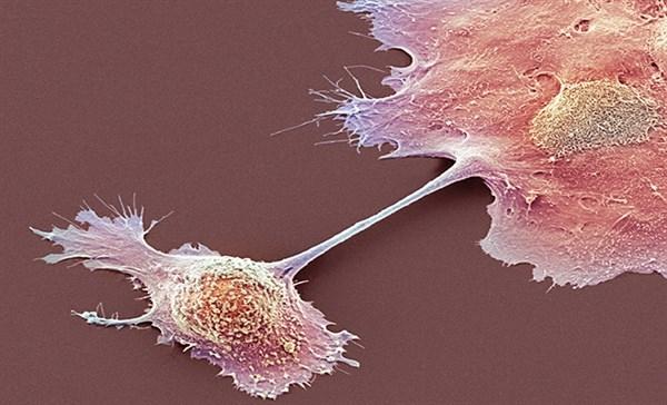 Tumor-specific mutations are common in high-grade neuroendocrine tumors.