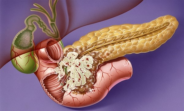 New Diabetes Diagnosis Associated With Pancreatic Cancer