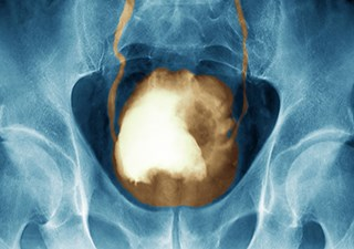 5-FU/Cisplatin, Gemcitabine May Be Effective Options for Invasive Bladder Cancer