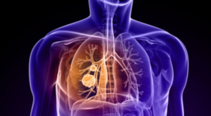 Lower oxygen levels may play a role in lung cancer risk.