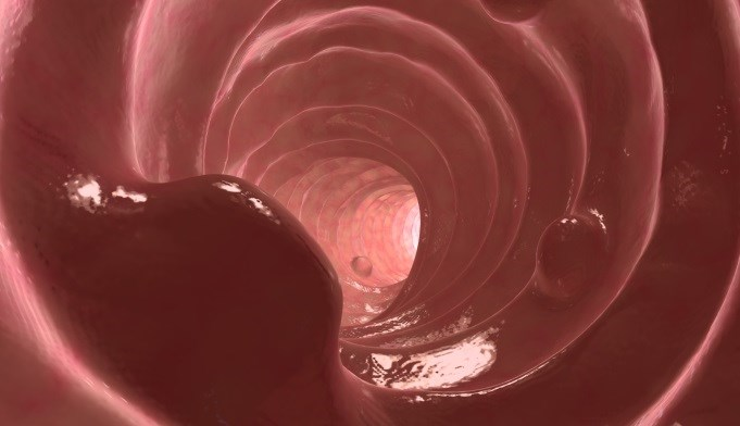 Colon Polyps More Likely in Obese Men