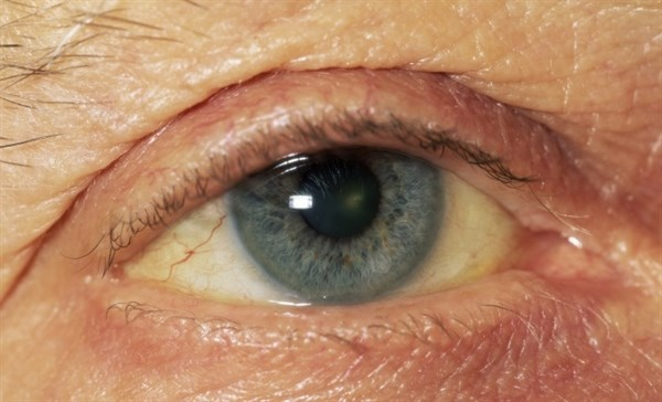 Selumetinib Has Modest Benefits in Eye Cancer