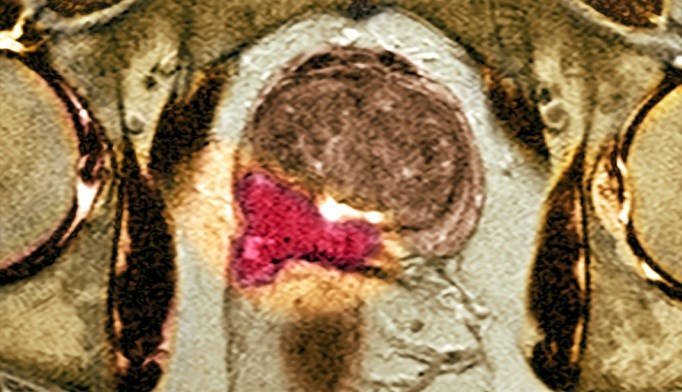 Chronic Inflammation More Common in Aggressive Prostate Cancer