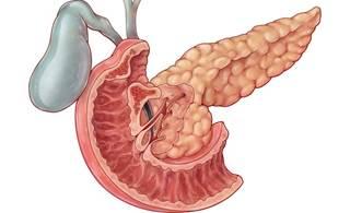 Ampullary Adenocarcinoma A Rare Malignancy Cancer