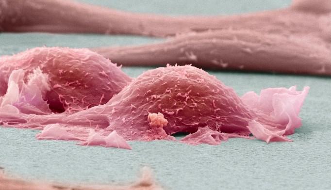 Durable Responses Seen With Atezolizumab in Advanced Alveolar Soft Part Sarcoma
