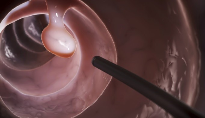 Colonoscopy Benefits Unscreened Elderly Patients