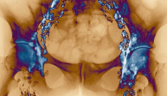 Nivolumab Designated Breakthrough Therapy for Hodgkin Lymphoma