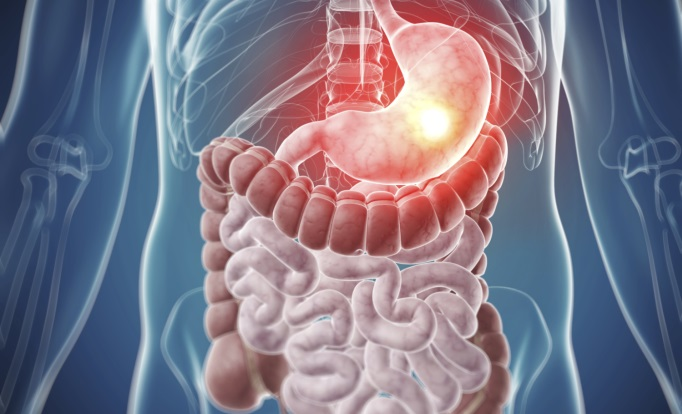 The Changing Landscape of Gastrointestinal Cancer ...
