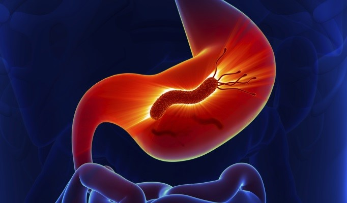 Treatment of H. pylori Increased Platelet Count in ITP
