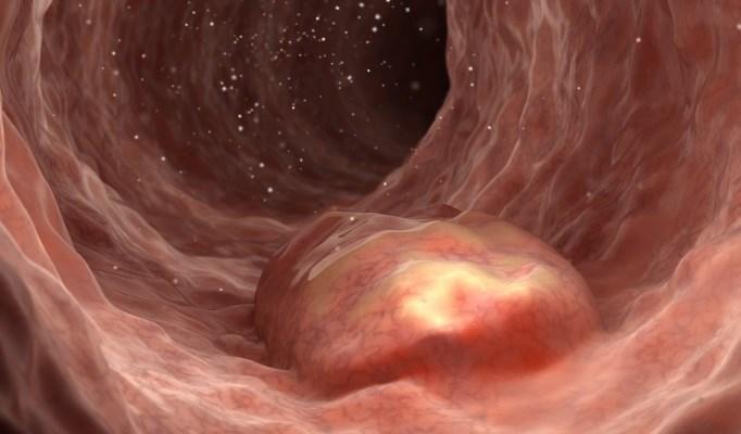 Narrow Band Imaging May Improve Detection of Colorectal Adenomas and Polyps