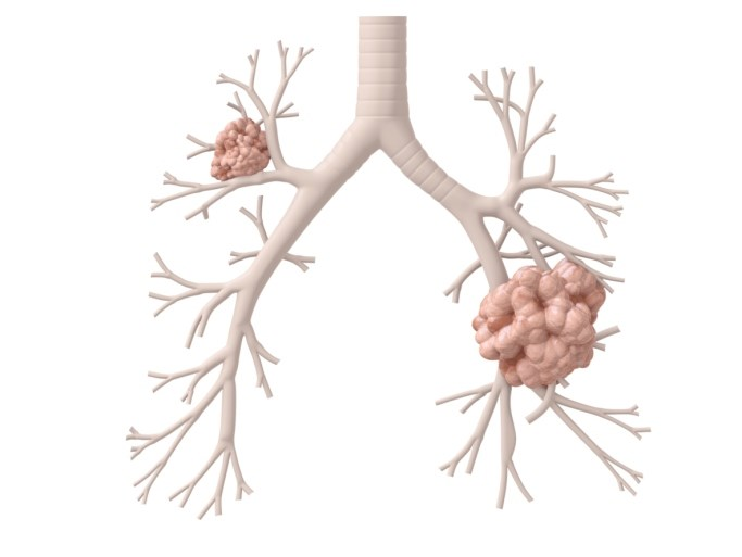 Pembrolizumab Significantly Prolongs OS Compared With Chemotherapy in NSCLC