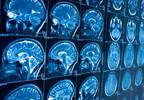 Kidney Cancer Brain Metastases Not On the Rise