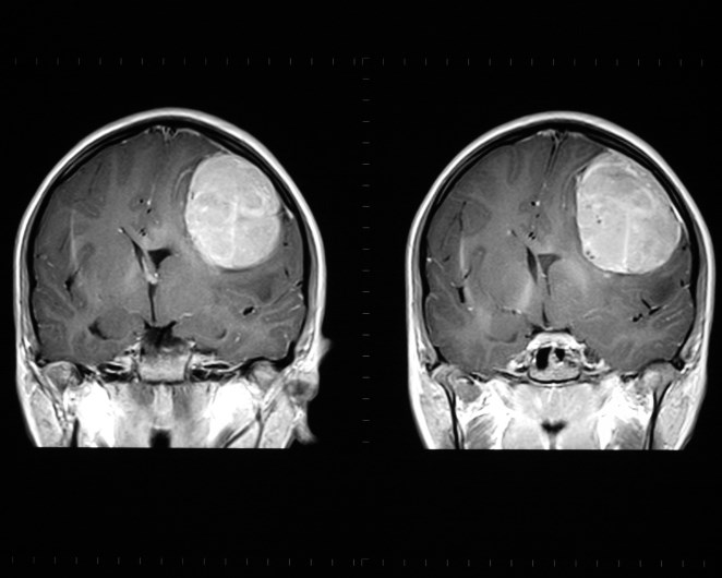 Adding bevacizumab to standard treatment of glioblastoma may have no impact on health-related qualit