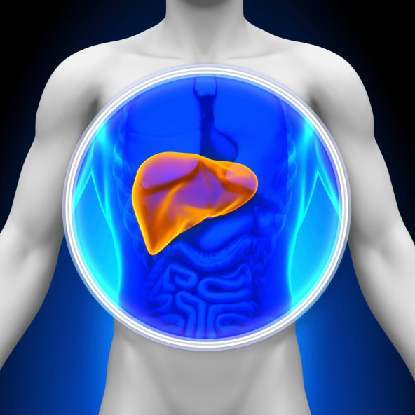 RETREAT Score Highly Predictive of HCC Recurrence Risk After Liver Transplantation