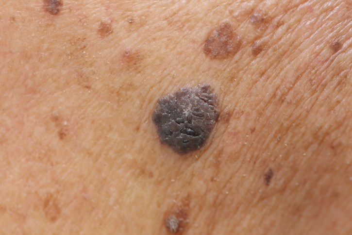 In sentinel node biopsy-positive melanoma, no survival benefit was achieved by complete lymph node dissection.