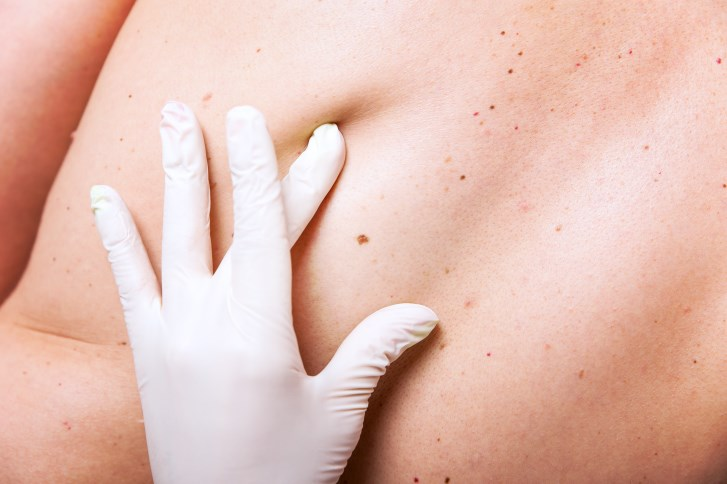 Individuals who have many moles are at increased risk for melanoma skin cancer.