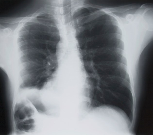 The prognostic marker, which was evaluated among patients with stage III NSCLC, held after adjusting for variables including chemoradiation approach and performance status.