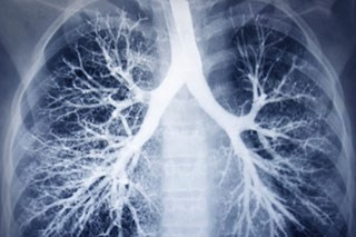 Maintenance Pembrolizumab Does Not Improve PFS in Small-cell Lung Cancer