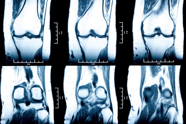 In Giant Cell Tumor of Bone, Denosumab Shows Robust Clinical Efficacy