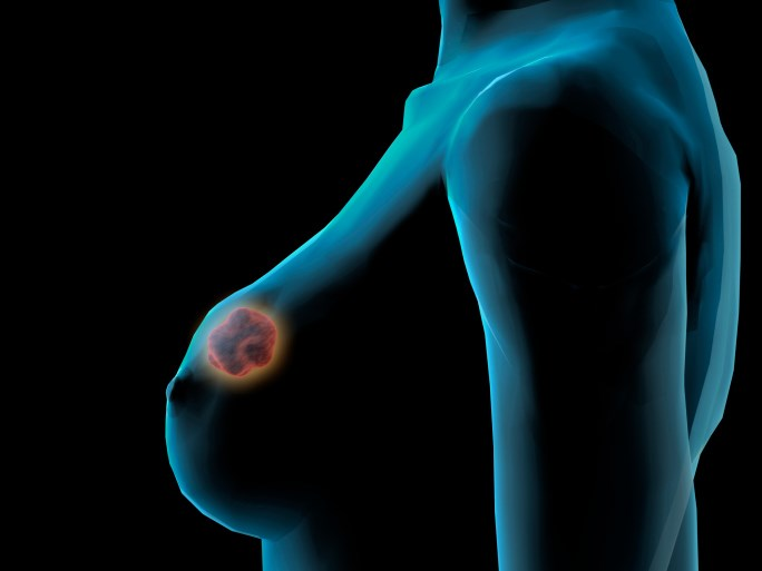 Neratinib demonstrated clinical efficacy for patients with HER2-positive, hormone-receptor-negative breast cancer.
