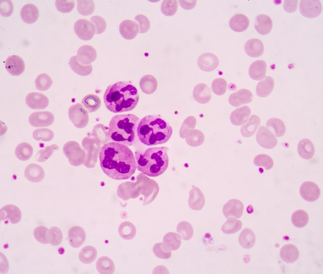Results of a prespecified interim analysis of the phase 3 TOWER study evaluating blinatumomab in patients with B-cell precursor acute lymphoblastic leukemia (ALL) showed that the primary endpoint of i