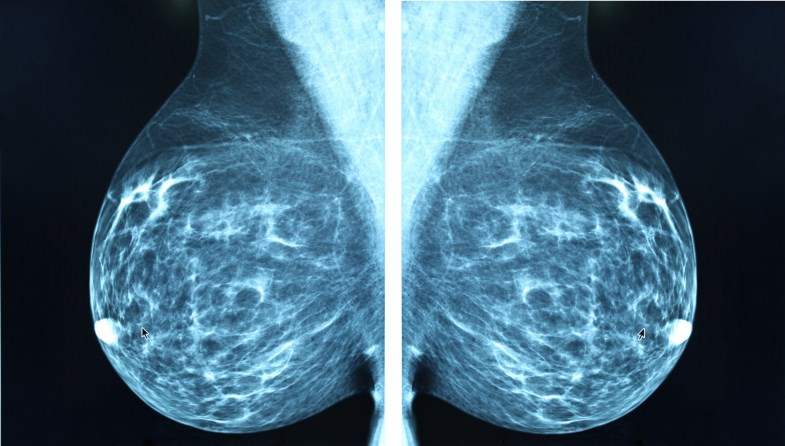 Treatment with post-mastectomy radiotherapy reduces the risk for locoregional failure (LRF) recurrence and mortality.