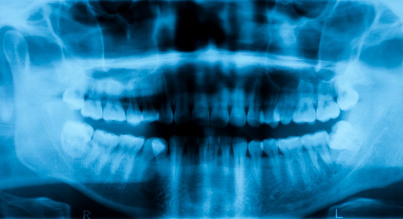 Nivolumab ± Ipilimumab for Squamous Cell Carcinoma of Oral Cavity