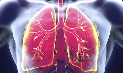 Nivolumab alone or combined with ipilimumab provided durable responses in patients with advanced small-cell lung cancer whose disease progressed on prior platinum therapies.