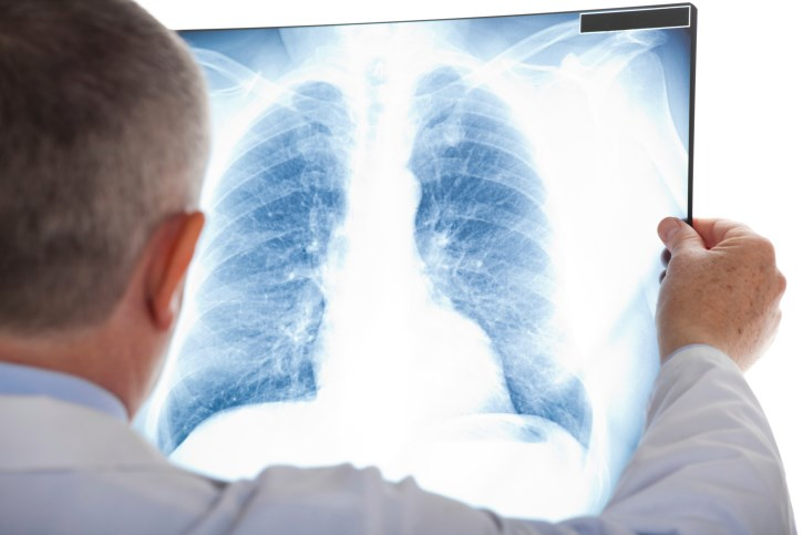 The addition of palifosfamide to carboplatin and etoposide failed to prolong survival among patients with extensive-stage small-cell lung cancer.