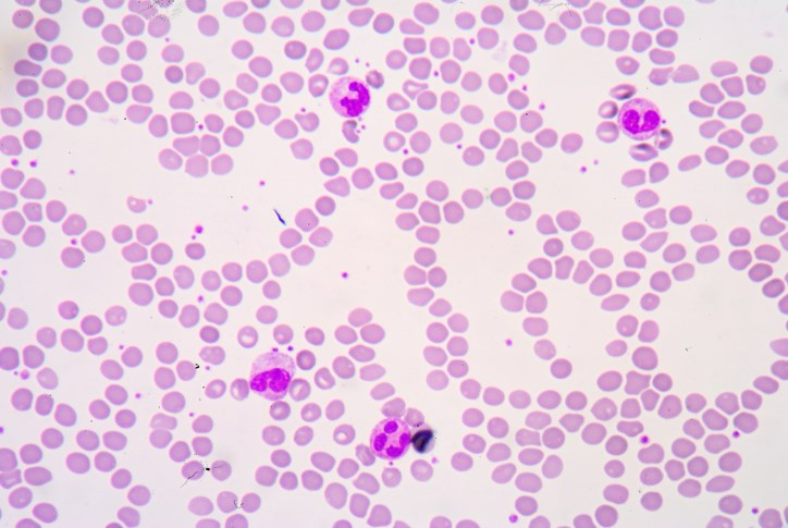 A significant proportion of patients with chronic lymphocytic leukemia achieved an overall response with venetoclax in combination with rituximab.
