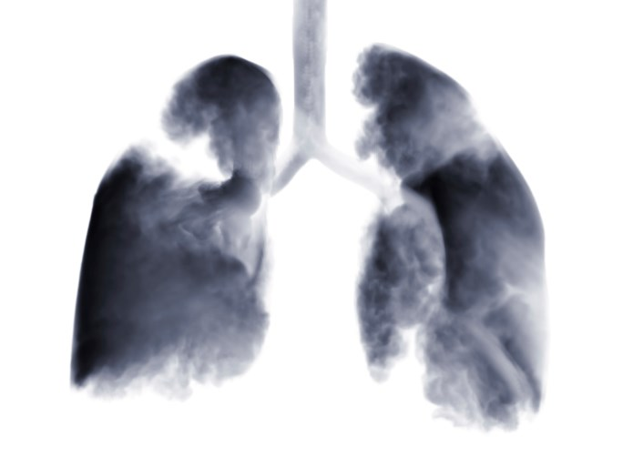 Atezolizumab improved overall survival among patients with locally-advanced or metastatic non-small cell lung cancer.