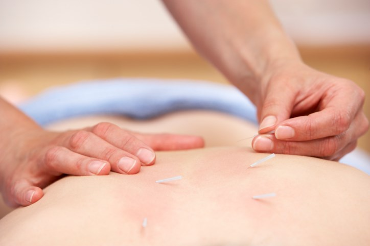 Acupuncture with enhanced self-care may be an effective integrative intervention for better quality of life.