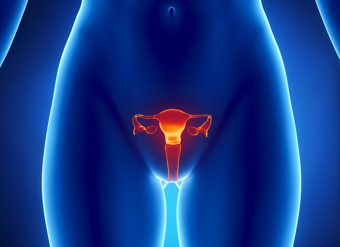 Prexasertib demonstrates promising activity in patients with BRCA wild type sporadic high-grade serous ovarian cancer.