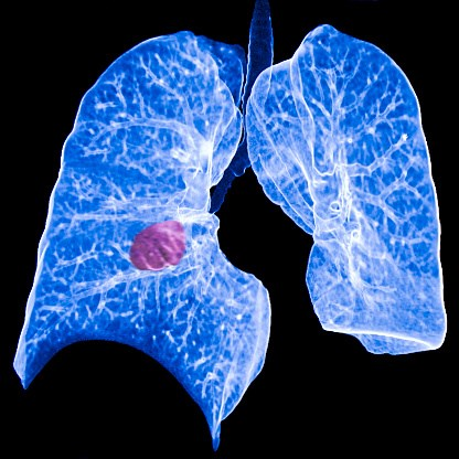 The addition of pemetrexed to gefitinib improved progression-free survival for patients with non-small cell lung cancer.
