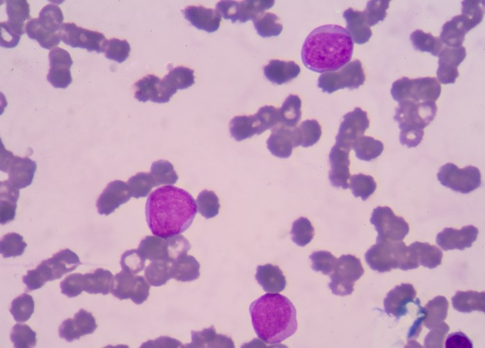 The ACS estimates that 18,960 new cases of chronic lymphocytic leukemia will be diagnosed in the United States in 2016.