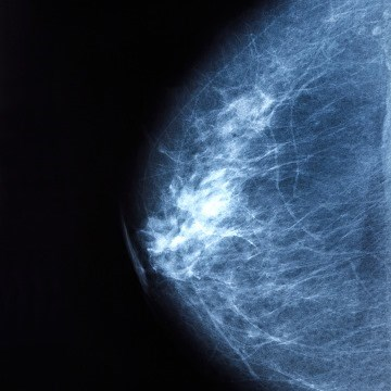 Authors of a modeling study recommend triennial mammography for 12% of women aged 50 years, and 20% aged 65 years with low breast density and few or no risk factors.