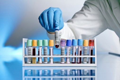 Researchers reviewed current research on maintenance therapy for multiple myeloma and provided recommendations for its application.