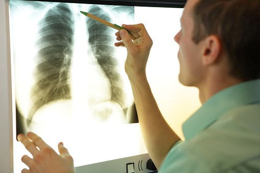 Lung Cancer Screening Rates Remain Low Despite USPSTF Recommendations